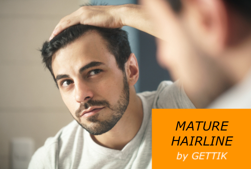 Mature Hairline vs Receding Hairline and Balding – facts and details
